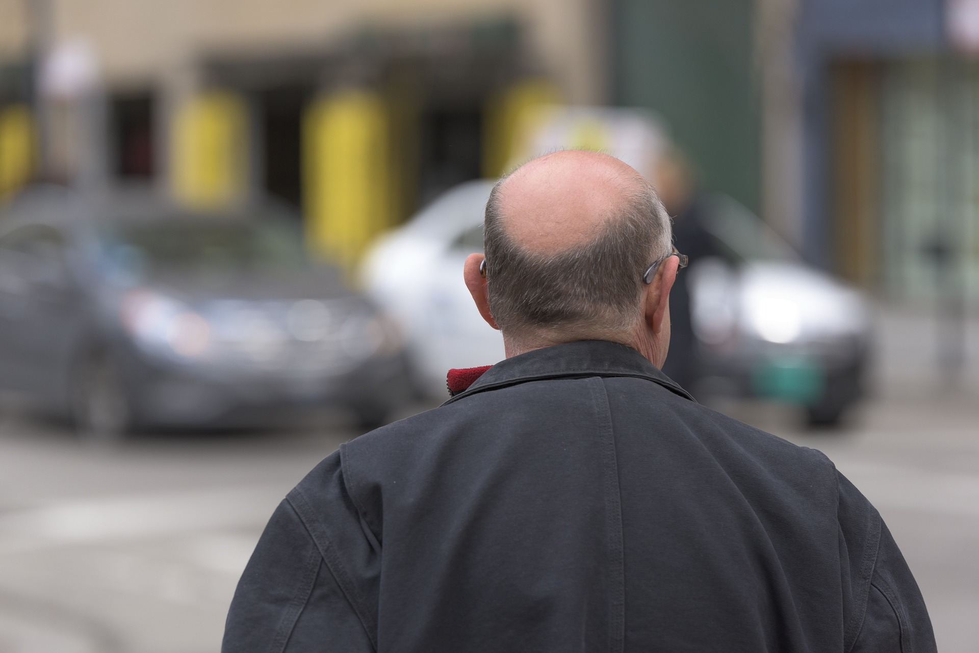 How To Prevent Baldness in Tamil