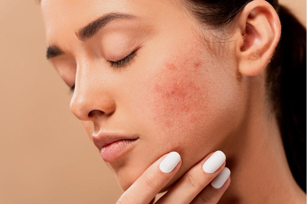 10 Benefits Of Applying Tomato On Your Face