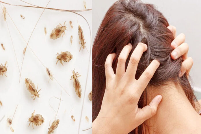 How To Get Rid Of Lice Naturally In Tamil